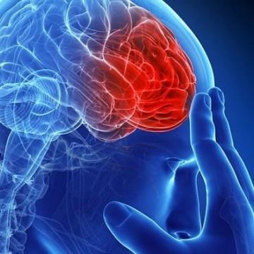 Entenda o que é um AVC, Acidente Vascular Cerebral