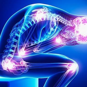 Fibromialgia: conheça o sintomas e tratamento da síndrome que afeta mais de 4 milhões de brasileiros
